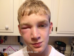 Poor kid got stung in the eyelid by a bee